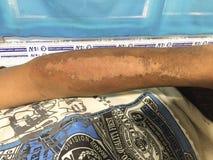 严重烟酸缺乏或pellagra或者光敏皮炎在醺酒的成人患者的右前臂 库存图片