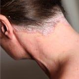 严重脖子的牛皮癣 免版税图库摄影