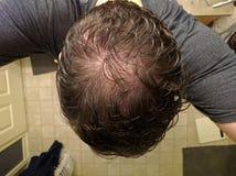 中部年迈的man& x27; s成为秃头的顶头selfie 免版税库存照片