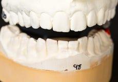 为畸齿矫正术采取的牙模子  库存照片