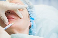 举整容手术概念的透明质酸胶原 库存照片