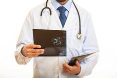 举行在白色背景的医生一个早期胸部肿瘤X射线测定法 图库摄影