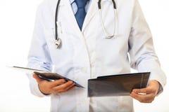 举行在白色背景的医生一个早期胸部肿瘤X射线测定法 库存图片