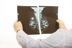 举行在白色背景的医生一个早期胸部肿瘤X射线测定法 免版税图库摄影