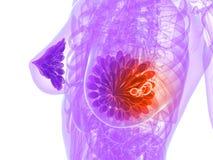 乳腺癌例证 免版税图库摄影
