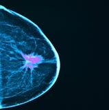 乳腺癌,早期胸部肿瘤X射线测定法 库存图片