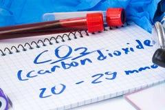 二氧化碳或二氧化碳在血清或血液在基本的新陈代谢的测试实验室试管有血液污迹的、听诊器或者影片和g 免版税库存图片