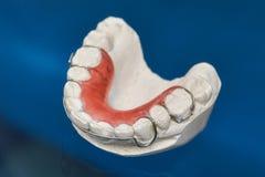 五颜六色的牙齿括号或保留牙的在玻璃背景 库存照片