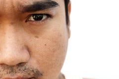 亚洲人面孔皮肤以后没有得到睡眠闪光,并且长期不保重 库存照片