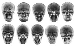 亚洲头骨的汇集 正面图 被隔绝的背景 库存图片