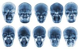 亚洲头骨的汇集 正面图 被隔绝的背景 免版税库存照片