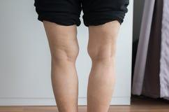 亚洲年长身体的妇女腿膝向外曲形状 免版税库存图片