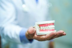 亚裔拿着完善的嘴牙下颌模型的人医生正牙学牙齿专业牙医口头清洁保健员 免版税库存图片