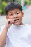 亚裔男孩被伤的牙 库存照片