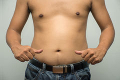 亚裔肥胖人有胆固醇 他显示肚子的多于脂肪 免版税库存照片