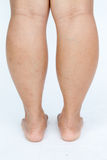 亚裔肥胖妇女的脚 免版税图库摄影