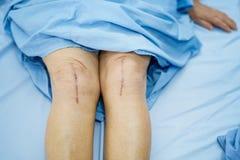 亚裔资深或年长老妇人妇女患者显示她的伤痕外科总膝盖关节替换缝合创伤手术arthropla 库存图片