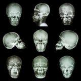 亚洲头骨的汇集 免版税库存图片
