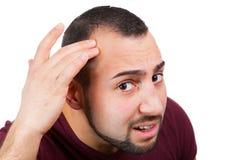 人丢失他的头发 库存图片