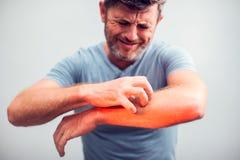 人们抓痒用手,手肘,发痒的医疗保健 库存照片