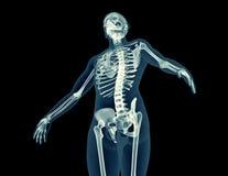 人体的X-射线图象 向量例证