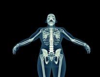 人体的X-射线图象 库存例证