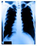 人力胸口的X-射线图象 免版税库存图片