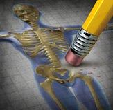 人力骨质疏松症 库存照片