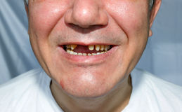 人微笑被剥皮的上部牙 免版税库存照片
