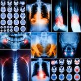 人拼贴画X射线辐射照片 免版税库存照片