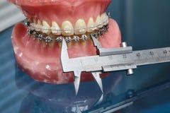 人的下颌或牙塑造与金属架线的牙齿括号 库存照片