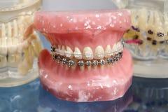 人的下颌或牙塑造与金属架线的牙齿括号 免版税库存照片