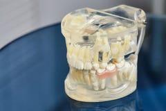 人的下颌或牙正牙学牙齿模型 免版税库存图片