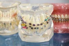 人的与植入管,牙齿括号的牙正牙学牙齿模型 免版税库存图片