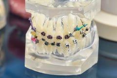 人的与植入管,牙齿括号的牙正牙学牙齿模型 库存照片