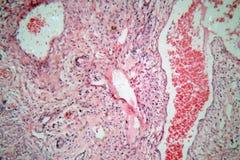 从人的子宫颈的组织细胞与子宫颈癌细胞 免版税库存照片