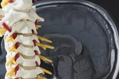 人的子宫颈脊椎模型和脑子MRI图片 免版税库存图片