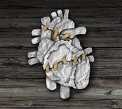 人的心脏手术 库存图片