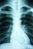 人的心脏X-射线照片  免版税库存图片