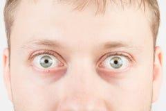 人的惊奇的眼睛 库存图片
