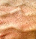 人的手皮肤 免版税图库摄影