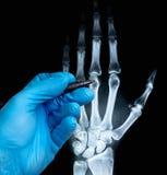 人的手X-射线用在手套的医生的手 库存照片