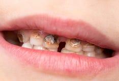 人的显示龋蛀牙的患者开放嘴 免版税库存图片