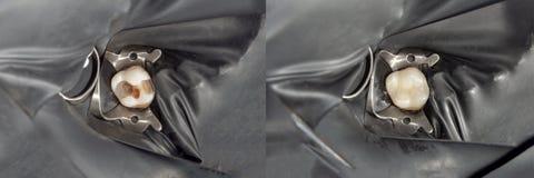 人的牙特写镜头在装填的恢复时 作为背景诱饵概念美元灰色吊异常分支 图库摄影
