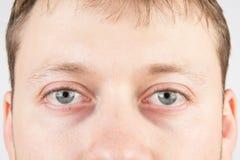 人的疲倦的眼睛 库存照片