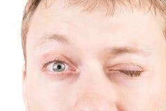 人的疲倦的眼睛 免版税图库摄影