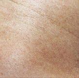 人的皮肤皮革纹理  免版税库存照片