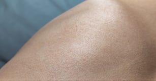 人的皮肤鸡皮疙瘩纹理 免版税库存图片