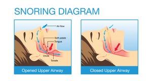 人的空中航线解剖学,当打鼾时 免版税库存图片