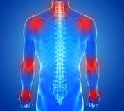 人的联接解剖学-伤害概念 免版税库存照片